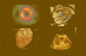 Inscrições abertas: mestrado em Imagiologia Cardiovascular